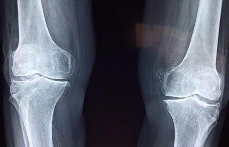מתי ולמי כדאי לבצע בדיקת צפיפות עצם ולמה זה חשוב?