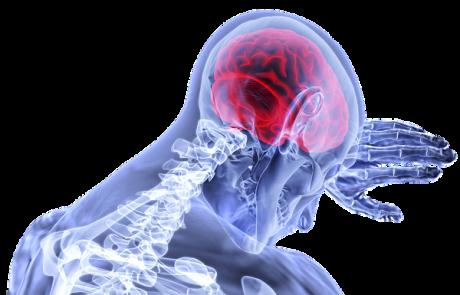 איך מזהים אירוע מוחי קל?